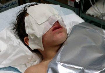 Fiumefreddo, 13enne ferito al volto da gravi ustioni per un petardo lanciato da un gruppo di balordi