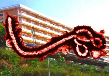 Ebola a Taormina? La parola a Roma