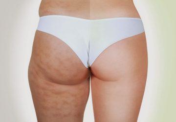 5 consigli per combattere la cellulite efficacemente