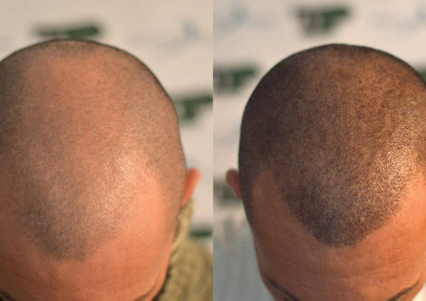 Alopecia? La tricopigmentazione può essere la soluzione